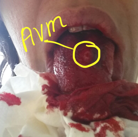 AVM Photo taken on June 19, 2014 after 2 hours of bleeding.